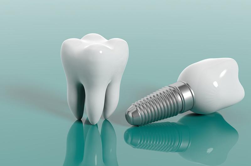 失った歯の機能・見た目を回復させます