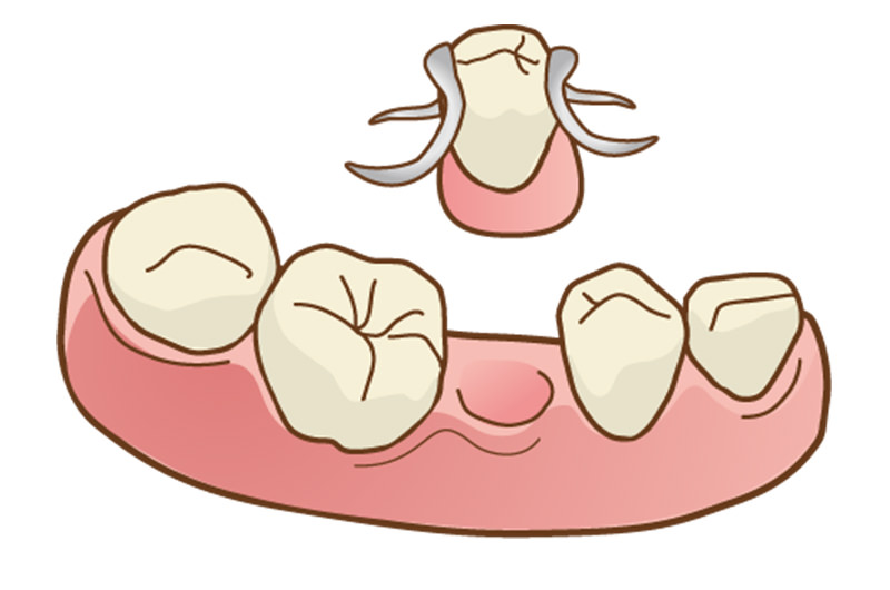まずはブリッジ・入れ歯から」が当院の考えです