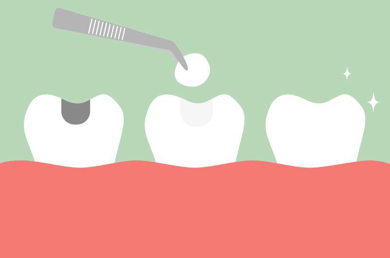 銀歯をセラミックに入れ換えてみませんか?