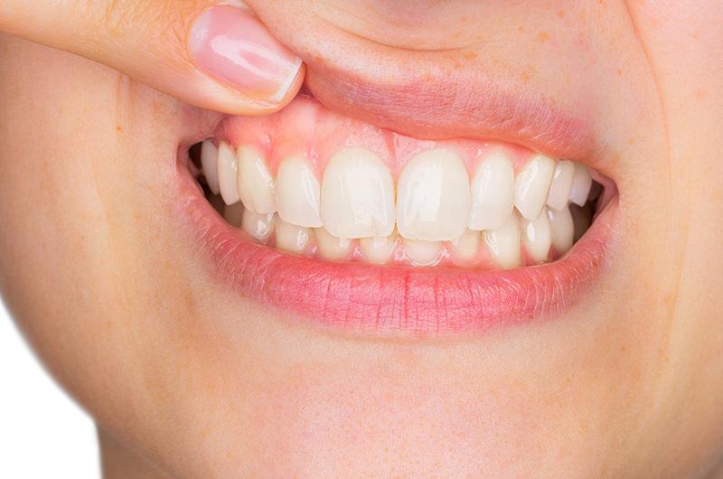 自覚症状なしに歯茎の骨がなくなっていきます