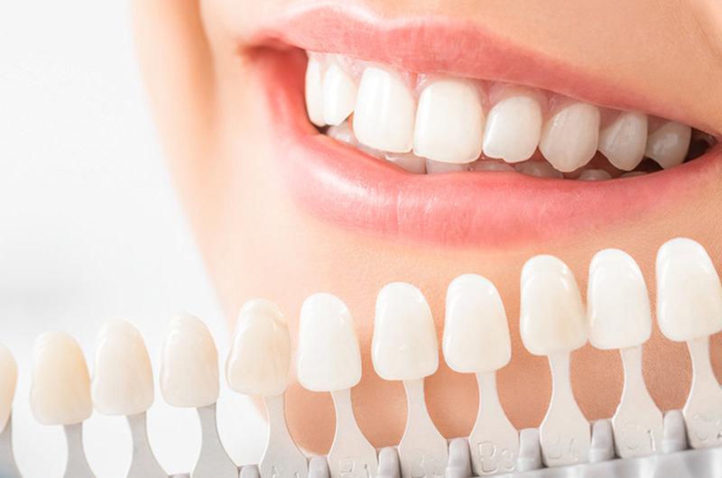 黄ばみ・変色を落として歯を白くしていきます